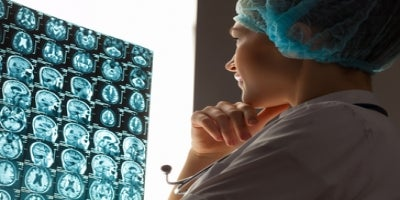 Stem Cells can be the your best weapon to fight brain cancer